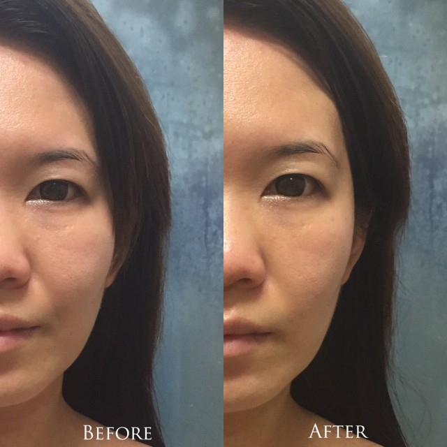 REN Keep Young and Beautiful Instant Firming Beauty Shot before after comparison