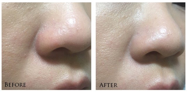 Chanel Le Blanc Light Creator Whitening Concealer - nose