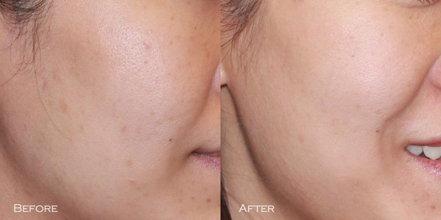 Q-Switch right cheek before after comparison